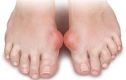 Hạt tophi ở chân người bệnh gout