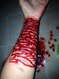 chảy máu ngoài lòng mạch