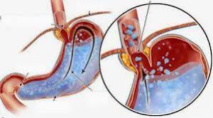 hình ảnh minh họa - dịch dạ dày