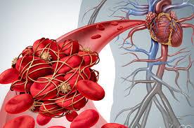 huyết khối mạch máu
