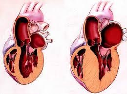phì đại cơ tim