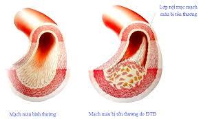 tổn thương nội mạch
