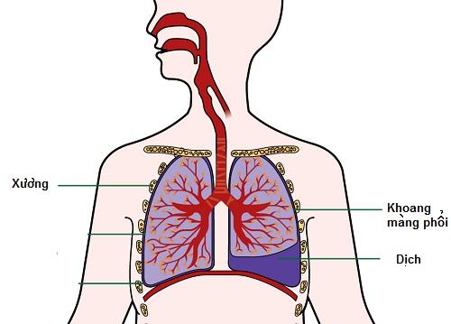 tràn dịch màng phổi - một hoạt động tăng tiết