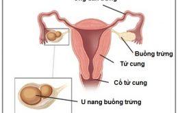 u nang buồng trứng