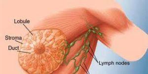ung thư mô liên kết