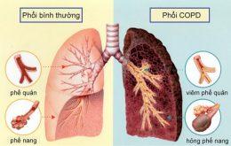 viêm lao tại phổi