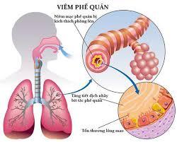 viêm phế quản phổi